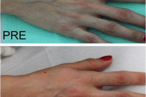 Filler Mani - Prima e Dopo