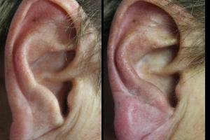 Filler Orecchie - Prima e Dopo