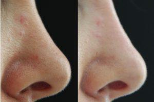 Rino Filler - Prima e Dopo