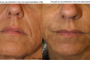 Filler Solchi Nasogenieni - Prima e Dopo